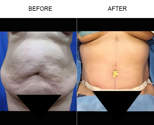 Lipo 360 Before & After