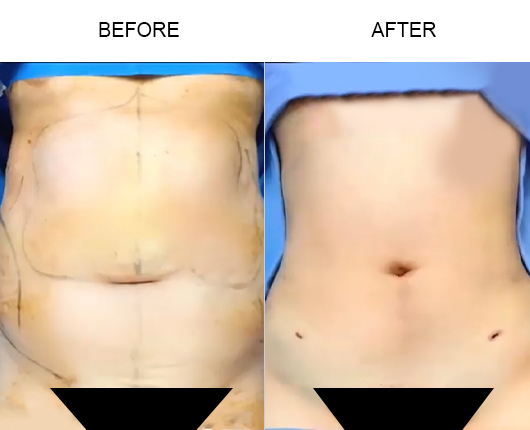Before And After Lipo 360