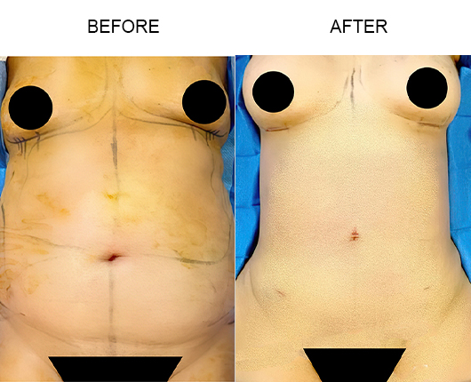 Lipo 360 Surgery Before And After