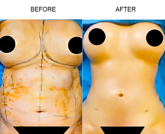 Lipo 360 Surgery Before & After