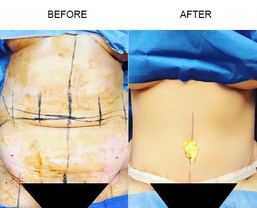 Lipo 360 Surgery Results