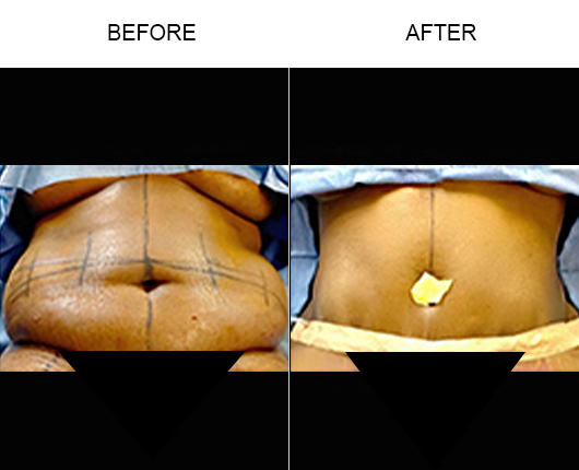 Before And After Lipo 360 Surgery