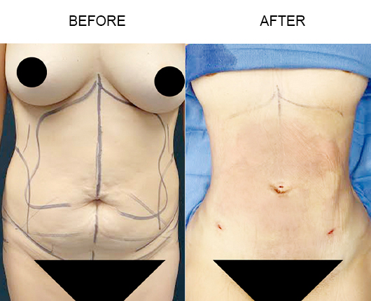 Before & After Lipo 360 Surgery