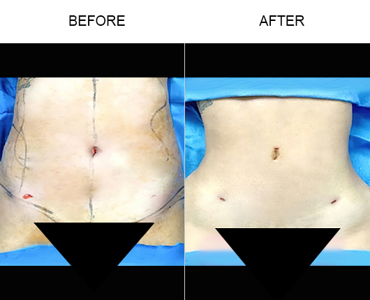 Lipo 360 Treatment Before And After
