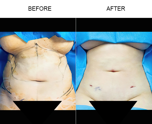 Lipo 360 Treatment Before & After