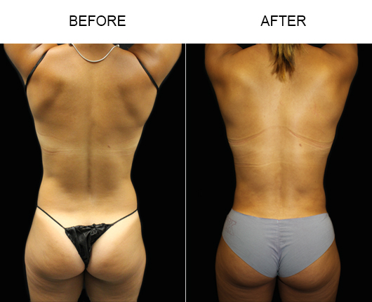 Florida Liposuction Surgery Before And After