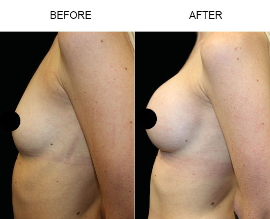 Breast Augmentation Surgery Before And After