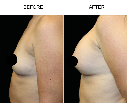 Breast Augmentation Treatment Before & After