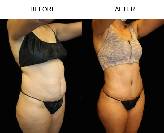 Before And After LowCut Abdominoplasty Surgery