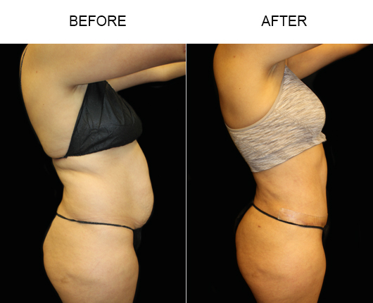 Before & After LowCut Abdominoplasty Surgery
