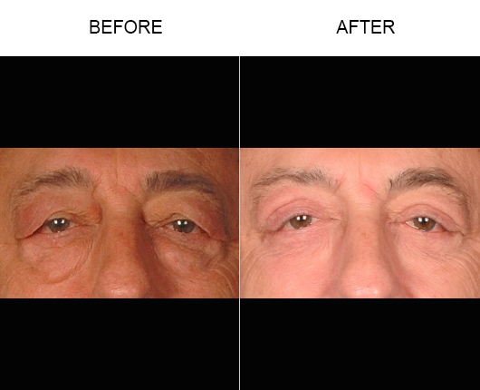 Upper Eyelid Surgery Before & After