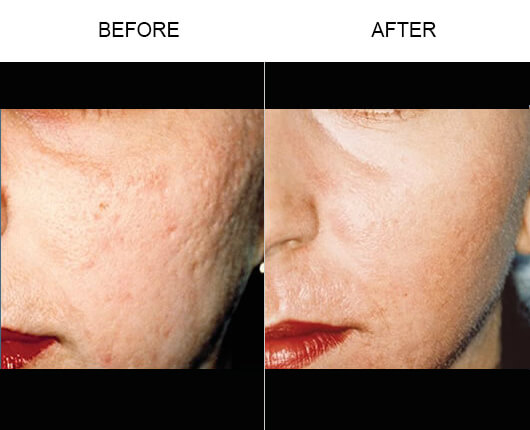 Laser Skin Resurfacing Treatment Before And After