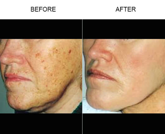 Laser Skin Resurfacing Orlando Non Surgical Face Lift