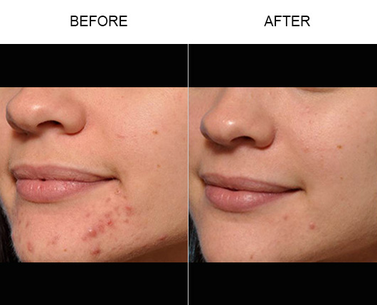 Microneedling & PRP Before and After