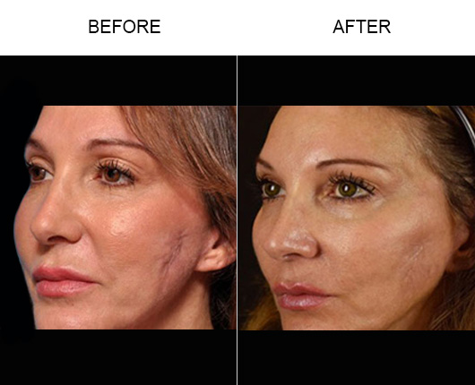 Microneedling & PRP Results