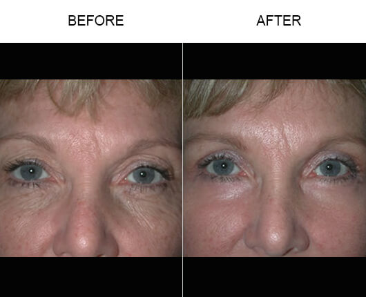 Eyelid Ptosis Surgery Results
