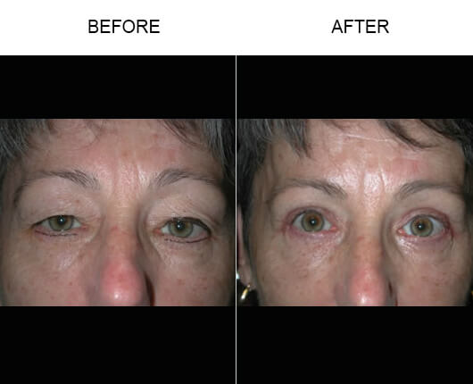 Drooping Eyelid Treatment Before And After