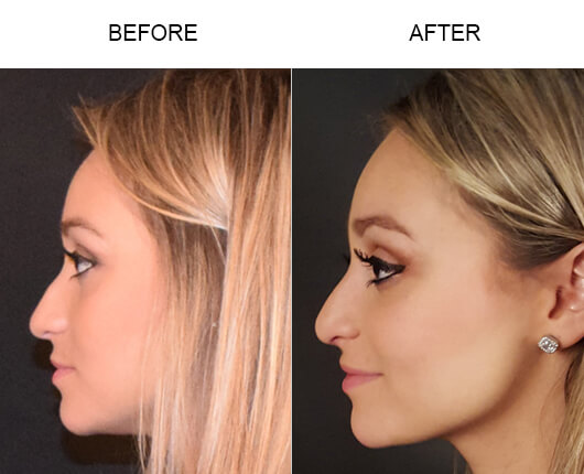 Rhinoplasty Florida Before and After