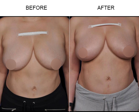 ThermiBreast® Results