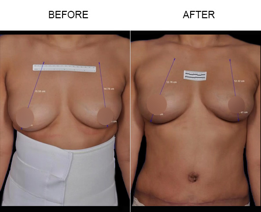 ThermiBreast® Before and After