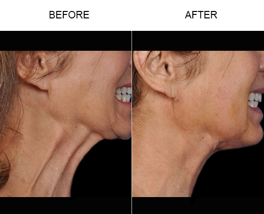 ThermiRase®  Before and After