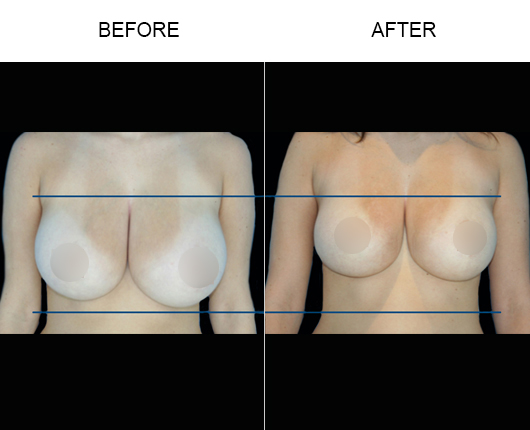 Non-Surgical Breast Lift Before & After