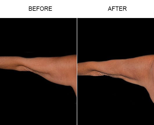 Bodytite For Arms Before & After