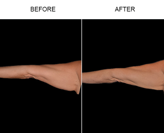 Bodytite Surgery For Arms Before & After