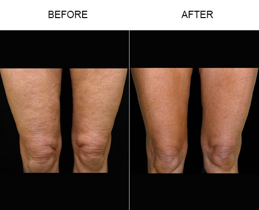 Before And After Bodytite Treatment