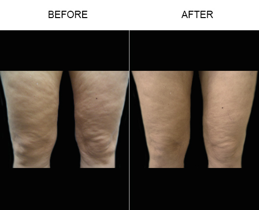 Before & After Bodytite Treatment