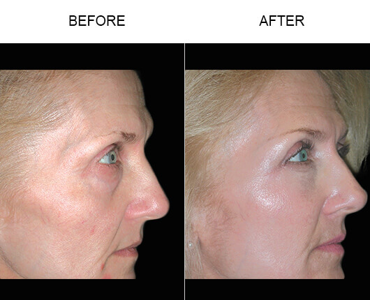 Cheek Lift Surgery Before And After