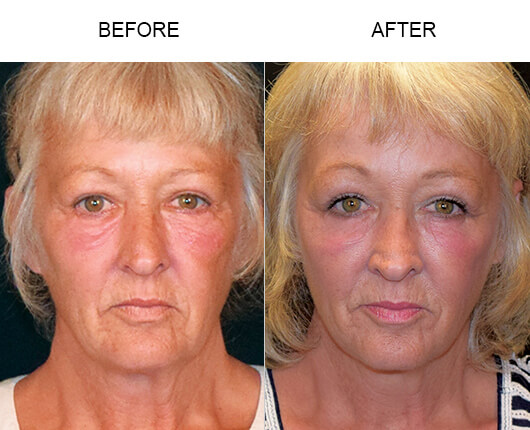 Cheek Lift Results