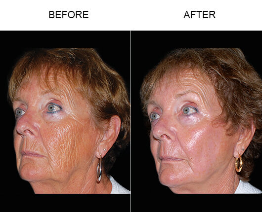 Laser Skin Resurfacing Florida Dot Therapy Orlando