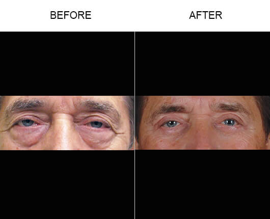 Blepharoplasty Orlando Before and After