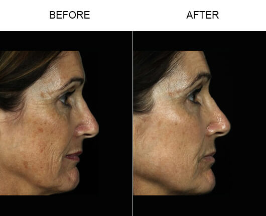 Fraxel Laser Treatment Before And After
