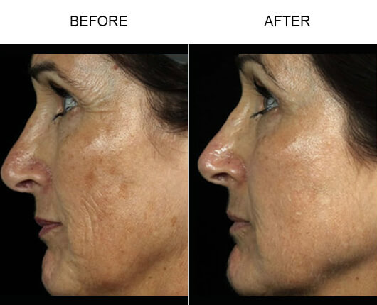 Fraxel Laser Treatment Results