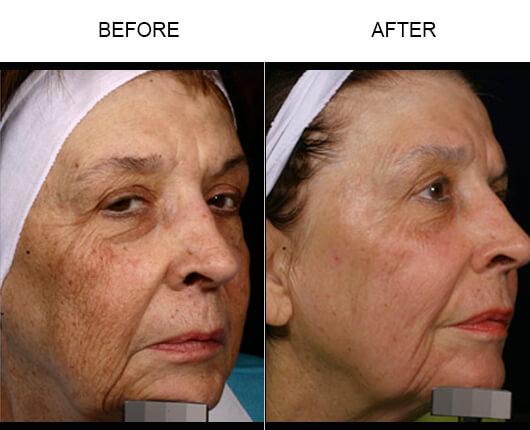 Facial Laser Treatment Before And After