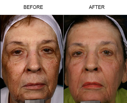 Facial Laser Treatment Results
