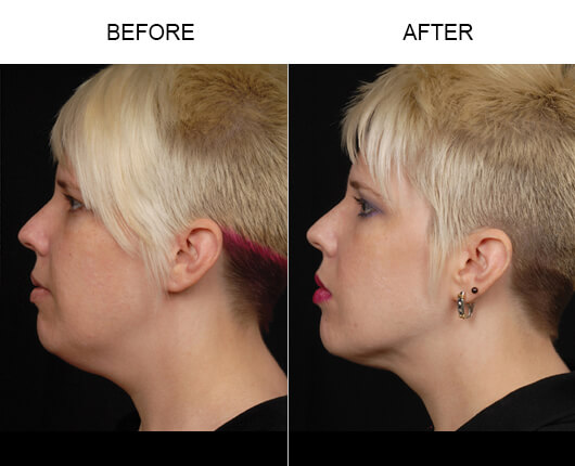 Facial Lipo Before And After
