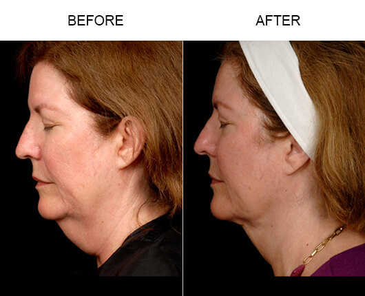 Face Liposuction Results