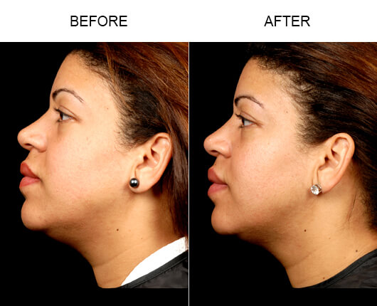 Face Lipo Before And After