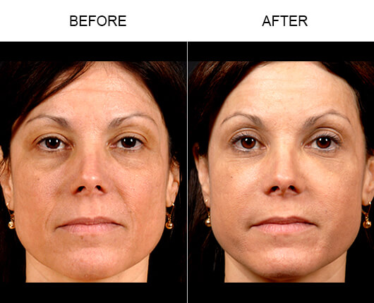 Naturalfill® Facial Filler Before And After