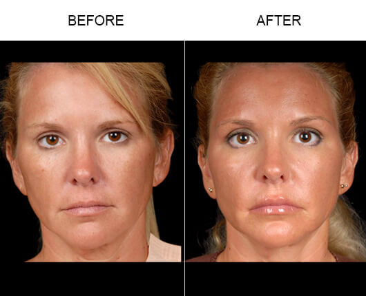 NaturalFill® Face Wrinkle Treatment Results