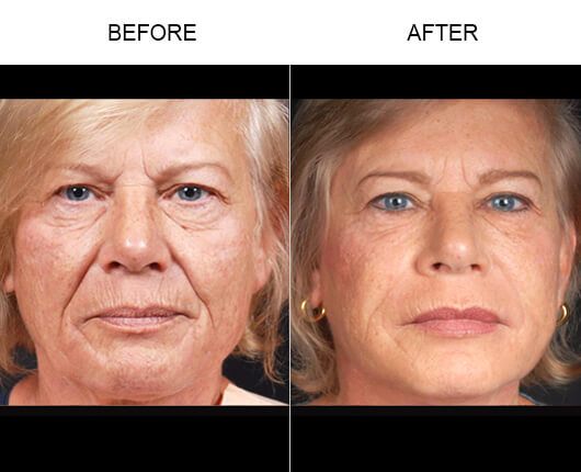 Natural Facial Fillers Before And After