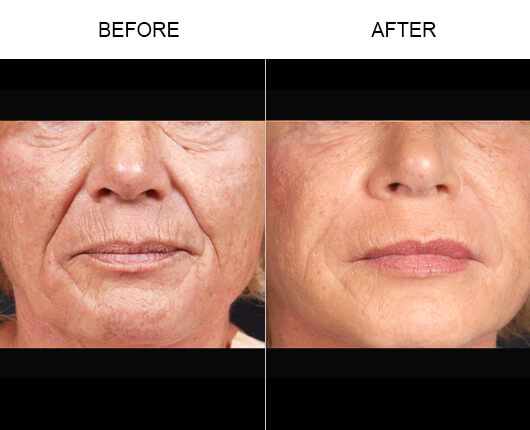 Bassin Center For Facial Plastic Surgery 35