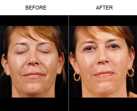 Facial Line Treatment Results