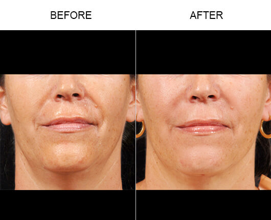Facial Line Treatment Before And After