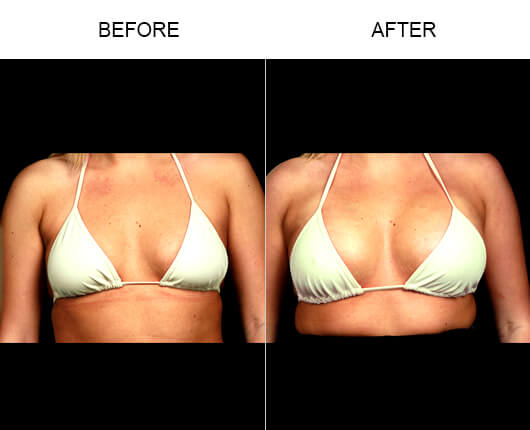 NaturalFill® Natural Breast Enhancement™ Before And After
