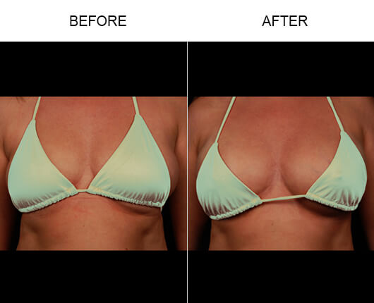 Natural Breast Enhancement Before And After