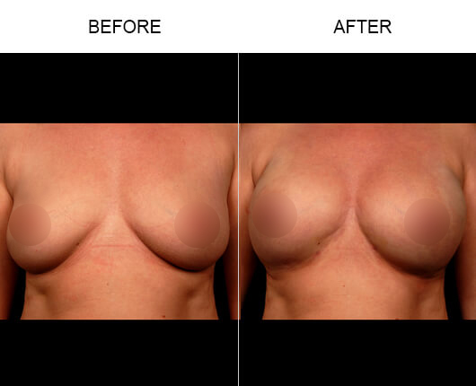 Natural Breast Enhancement Results